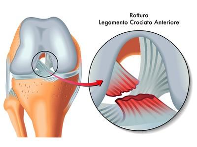 il dolore e l'instabilita' della rotula